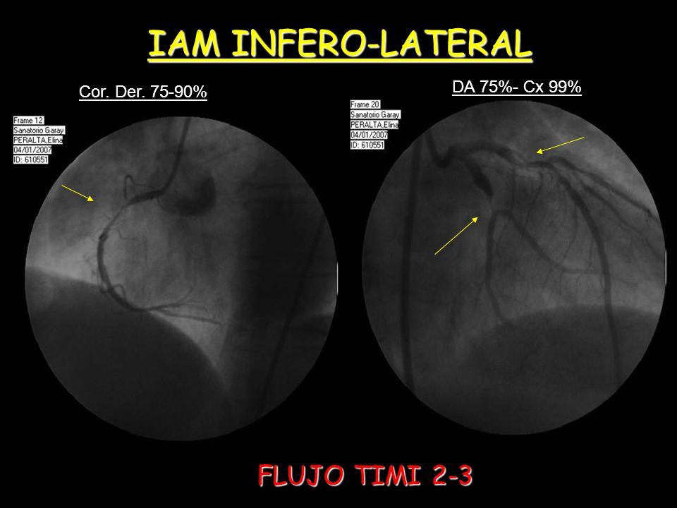 IAM INFERO-LATERAL Cor. Der. 75-90% DA 75%- Cx 99% FLUJO TIMI 2-3