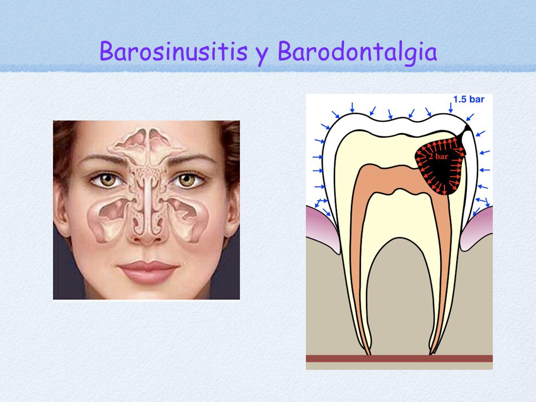 Barosinusitis y Barodontalgia