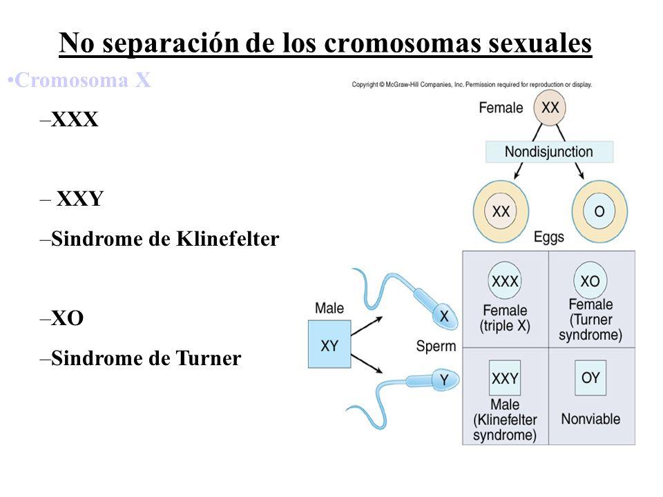 Mutaciones genómicas Trisomía 21 síndrome de Down