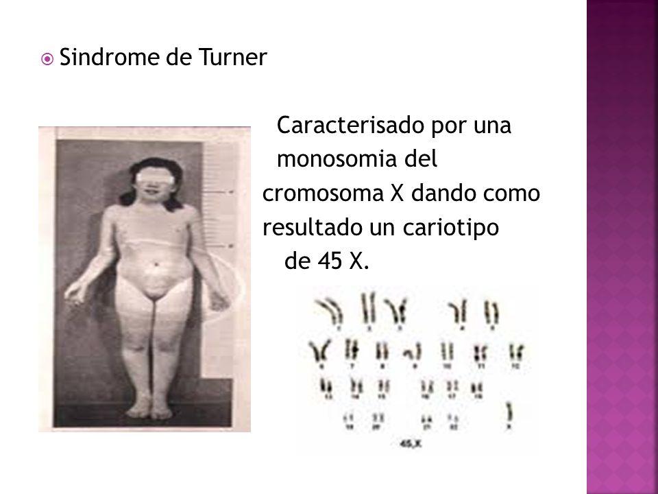 Sindrome de Turner Caracterisado por una monosomia del cromosoma X dando como resultado un cariotipo de 45 X.