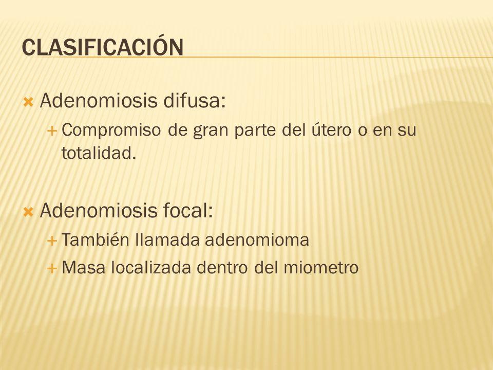 CLASIFICACIÓN Adenomiosis difusa: Compromiso de gran parte del útero o en su totalidad. Adenomiosis focal: También llamada adenomioma Masa localizada