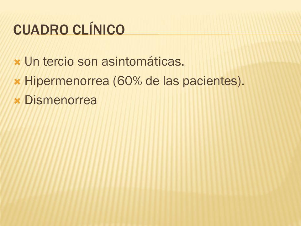 CUADRO CLÍNICO Un tercio son asintomáticas. Hipermenorrea (60% de las pacientes). Dismenorrea
