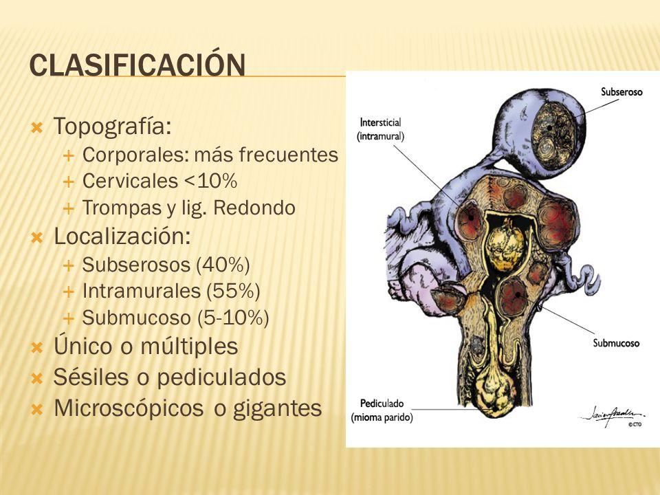 CLASIFICACIÓN Topografía: Corporales: más frecuentes Cervicales <10% Trompas y lig. Redondo Localización: Subserosos (40%) Intramurales (55%) Submucos