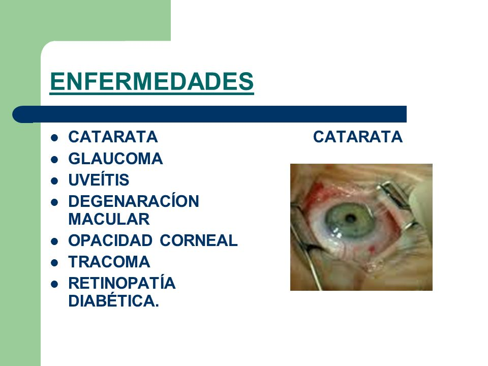 ENFERMEDADES CATARATA GLAUCOMA UVEÍTIS DEGENARACÍON MACULAR OPACIDAD CORNEAL TRACOMA RETINOPATÍA DIABÉTICA. CATARATA