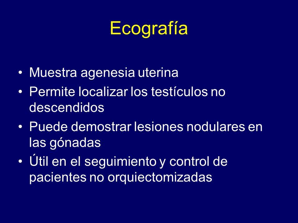 Ecografía Muestra agenesia uterina Permite localizar los testículos no descendidos Puede demostrar lesiones nodulares en las gónadas Útil en el seguim