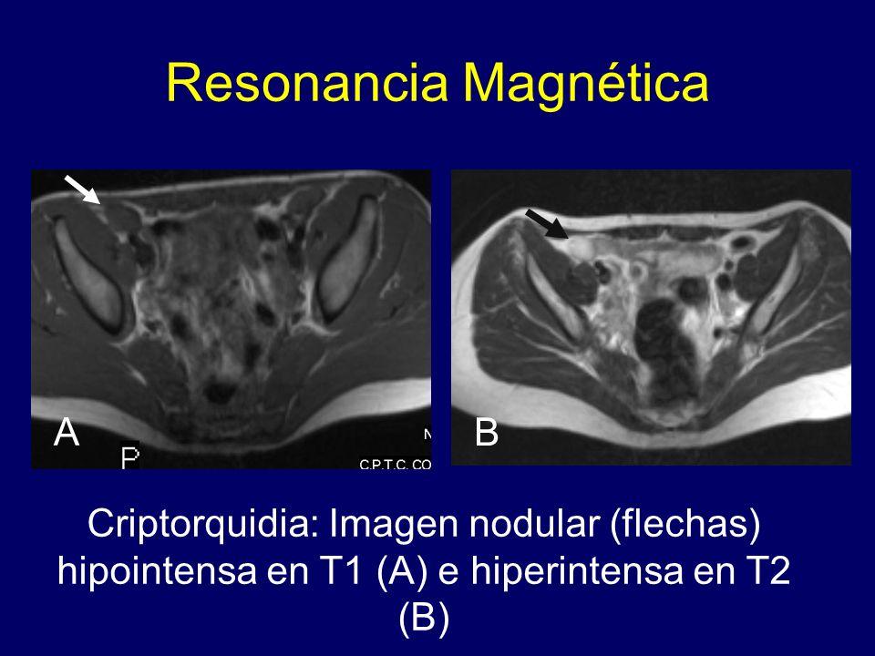 Resonancia Magnética Criptorquidia: Imagen nodular (flechas) hipointensa en T1 (A) e hiperintensa en T2 (B) A B
