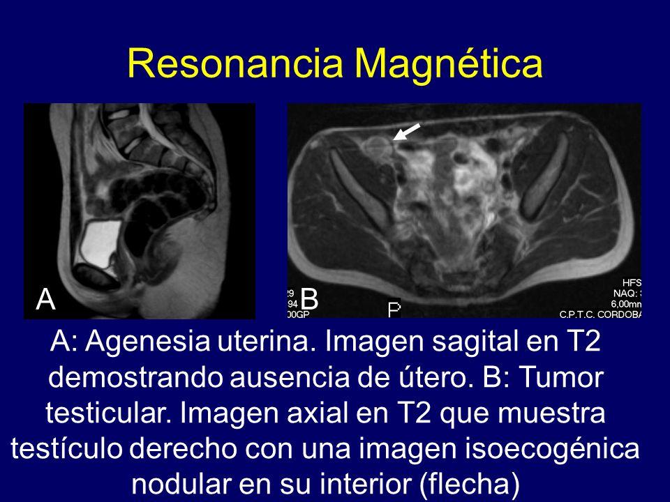 Resonancia Magnética A: Agenesia uterina. Imagen sagital en T2 demostrando ausencia de útero. B: Tumor testicular. Imagen axial en T2 que muestra test