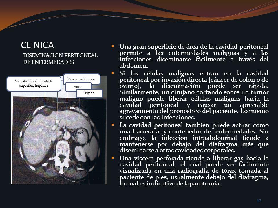 CLINICA DISEMINACION PERITONEAL DE ENFERMEDADES Una gran superficie de área de la cavidad peritoneal permite a las enfermedades malignas y a las infec