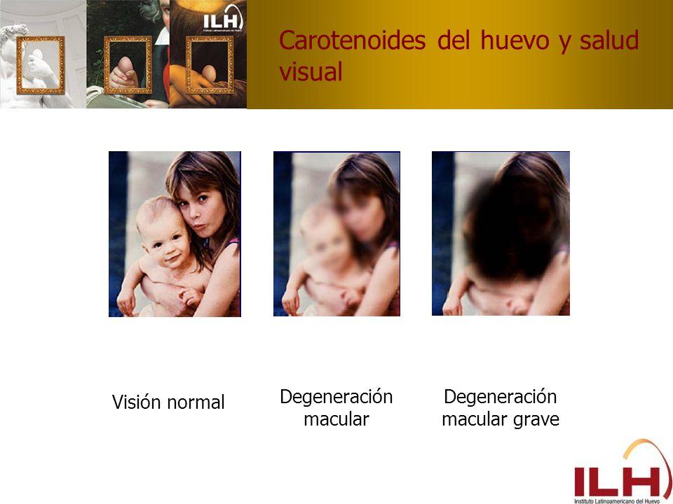 Carotenoides del huevo y salud visual Visión normal Degeneración macular Degeneración macular grave