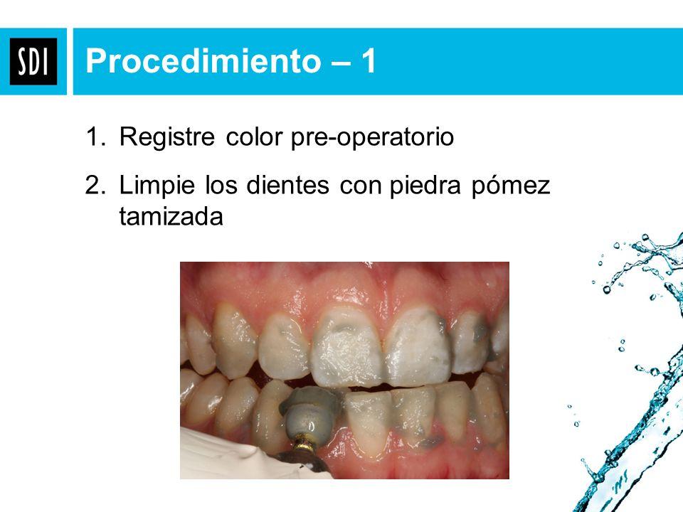 Take pre-op shade. Procedimiento – 1 1. Registre color pre-operatorio 2. Limpie los dientes con piedra pómez tamizada