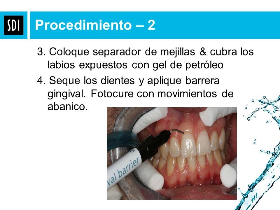 3. Coloque separador de mejillas & cubra los labios expuestos con gel de petróleo 4. Seque los dientes y aplique barrera gingival. Fotocure con movimi