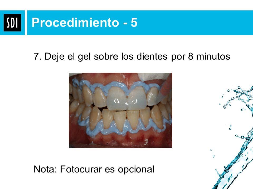 Apply Gingival Barrier & light cure. Procedimiento - 5 7. Deje el gel sobre los dientes por 8 minutos Nota: Fotocurar es opcional