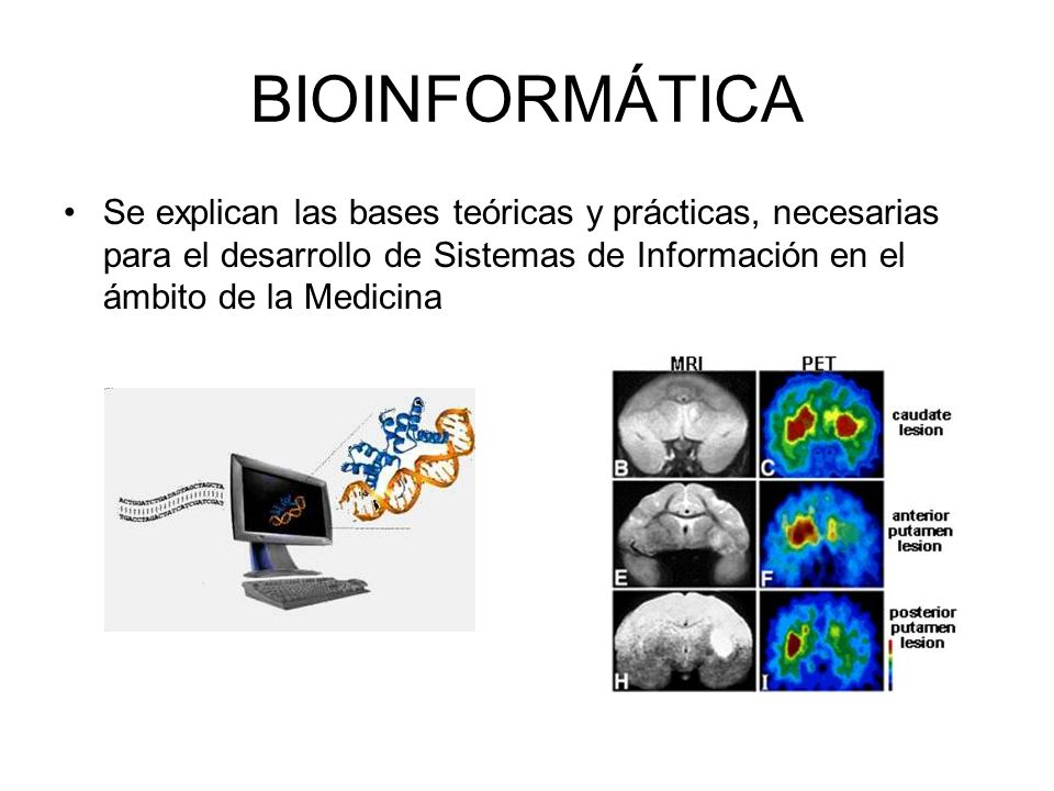 BIOINFORMÁTICA Se explican las bases teóricas y prácticas, necesarias para el desarrollo de Sistemas de Información en el ámbito de la Medicina