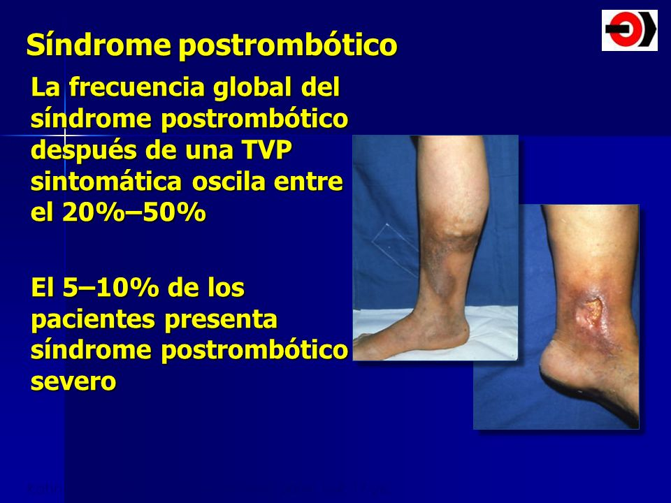 Síndrome postrombótico La frecuencia global del síndrome postrombótico después de una TVP sintomática oscila entre el 20%–50% El 5–10% de los paciente