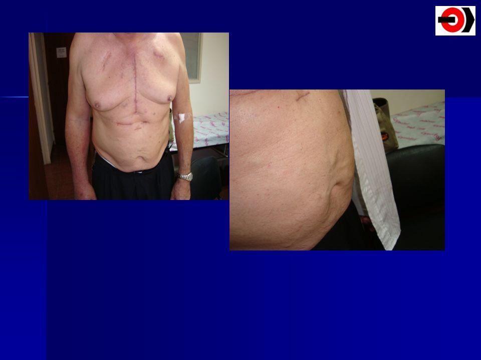 VariablesPuntos Signos y síntomas de TVP TEPA probable Inmovilidad > 3 días Cirugía en 4 semanas previas TVP ó TEPA previos FC > 100 latidos /min Hemoptisis Cancer activo en tratamiento (dentro de los 6 meses) 331,501,501,501,5011 Baja probabilidad 0 Mediana 2 - 6 Alta 6 Probabilidad Clínica de TEPA por el Sistema de Puntaje Simplificado ( WELLS) Ann Intern Med 1998;129:997-1005