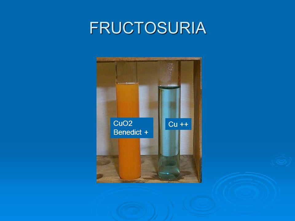 FRUCTOSURIA Cu ++ CuO2 Benedict +