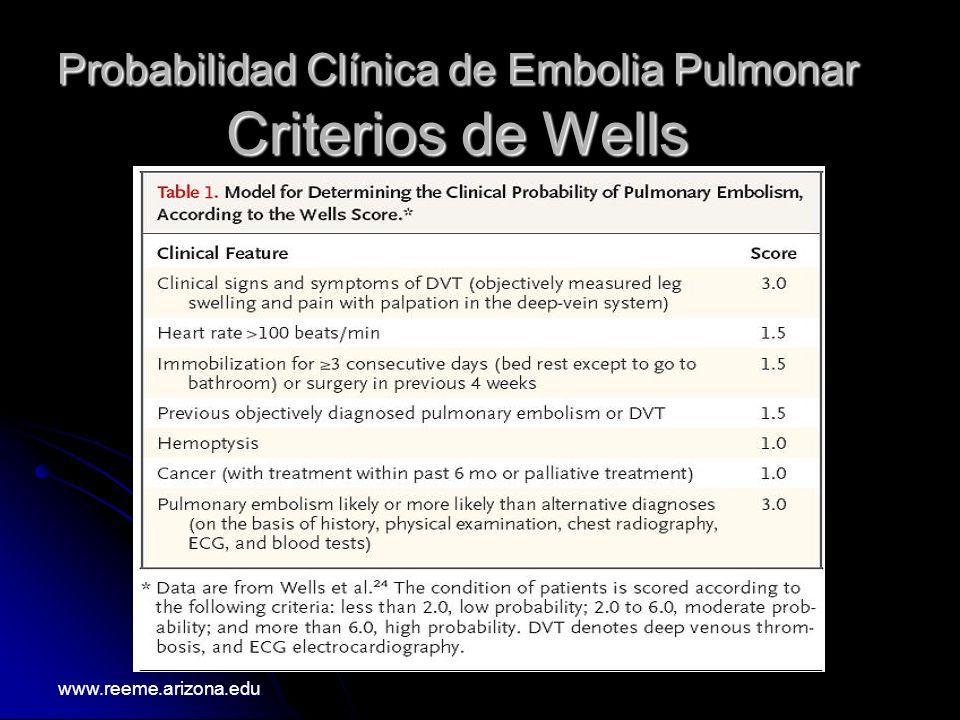 Probabilidad Clínica de Embolia Pulmonar Criterios de Wells www.reeme.arizona.edu