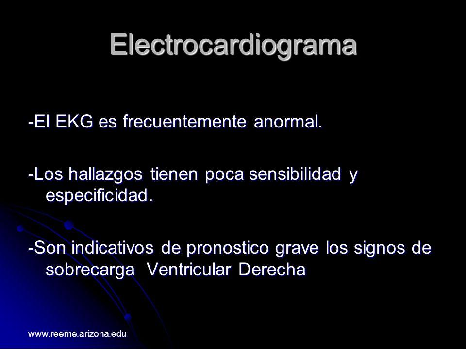 Electrocardiograma -El EKG es frecuentemente anormal. -Los hallazgos tienen poca sensibilidad y especificidad. -Son indicativos de pronostico grave lo