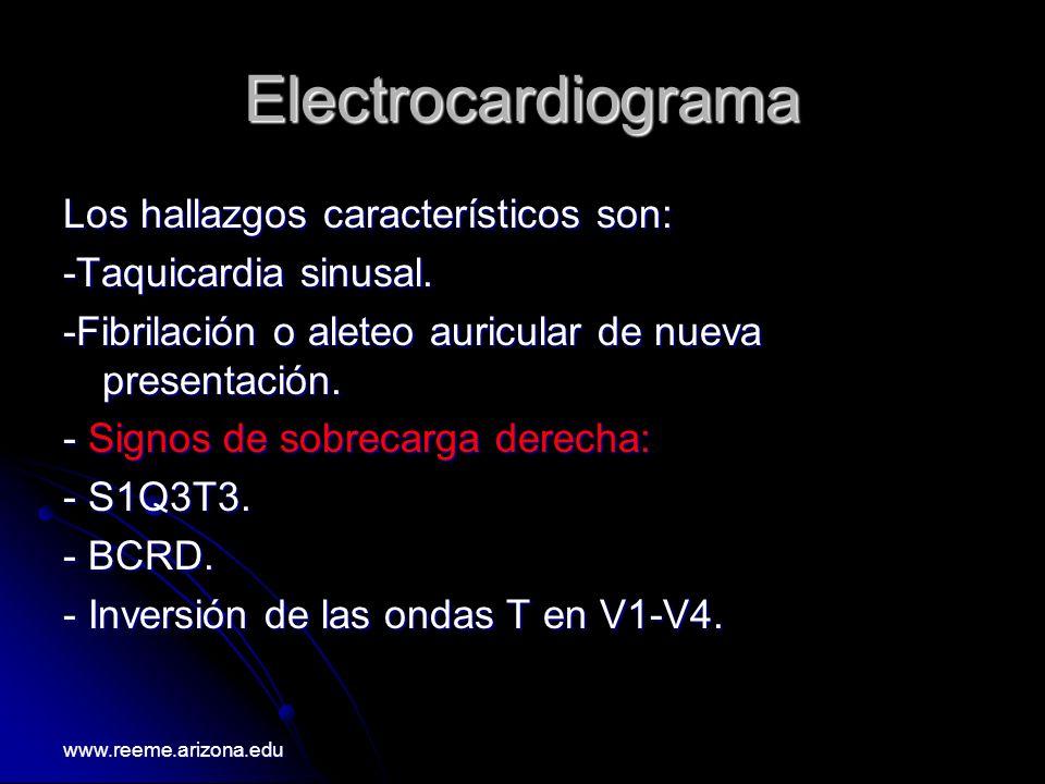Electrocardiograma Los hallazgos característicos son: -Taquicardia sinusal. -Fibrilación o aleteo auricular de nueva presentación. - Signos de sobreca