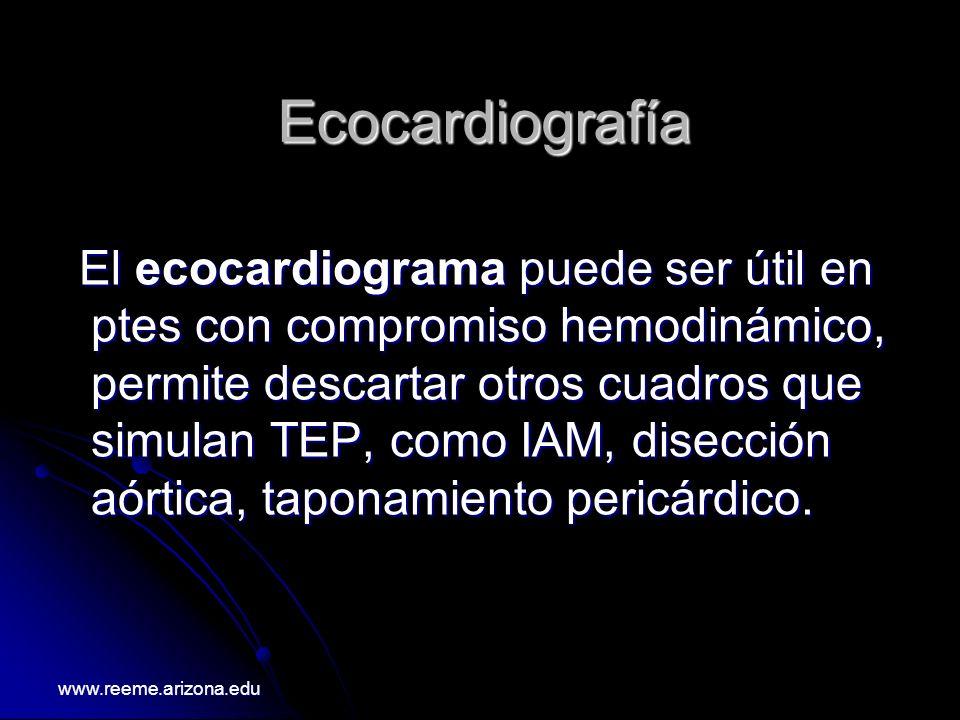 Ecocardiografía El ecocardiograma puede ser útil en ptes con compromiso hemodinámico, permite descartar otros cuadros que simulan TEP, como IAM, disec