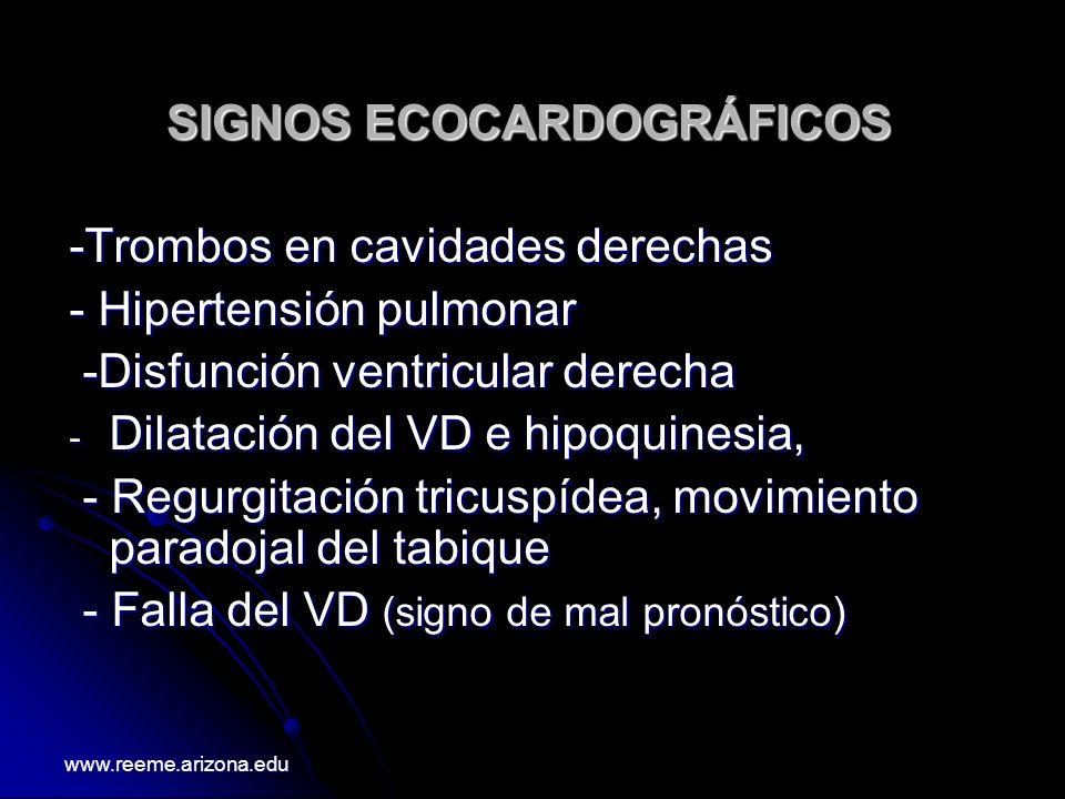 SIGNOS ECOCARDOGRÁFICOS -Trombos en cavidades derechas - Hipertensión pulmonar -Disfunción ventricular derecha -Disfunción ventricular derecha - Dilat