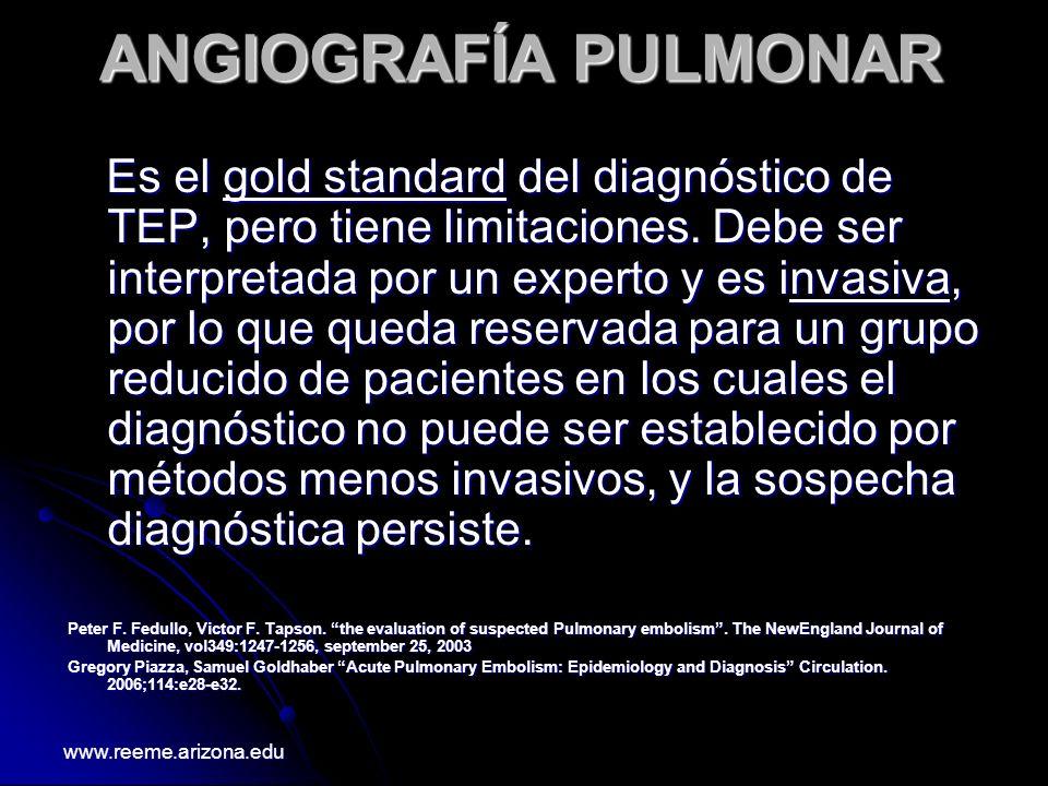ANGIOGRAFÍA PULMONAR Es el gold standard del diagnóstico de TEP, pero tiene limitaciones. Debe ser interpretada por un experto y es invasiva, por lo q