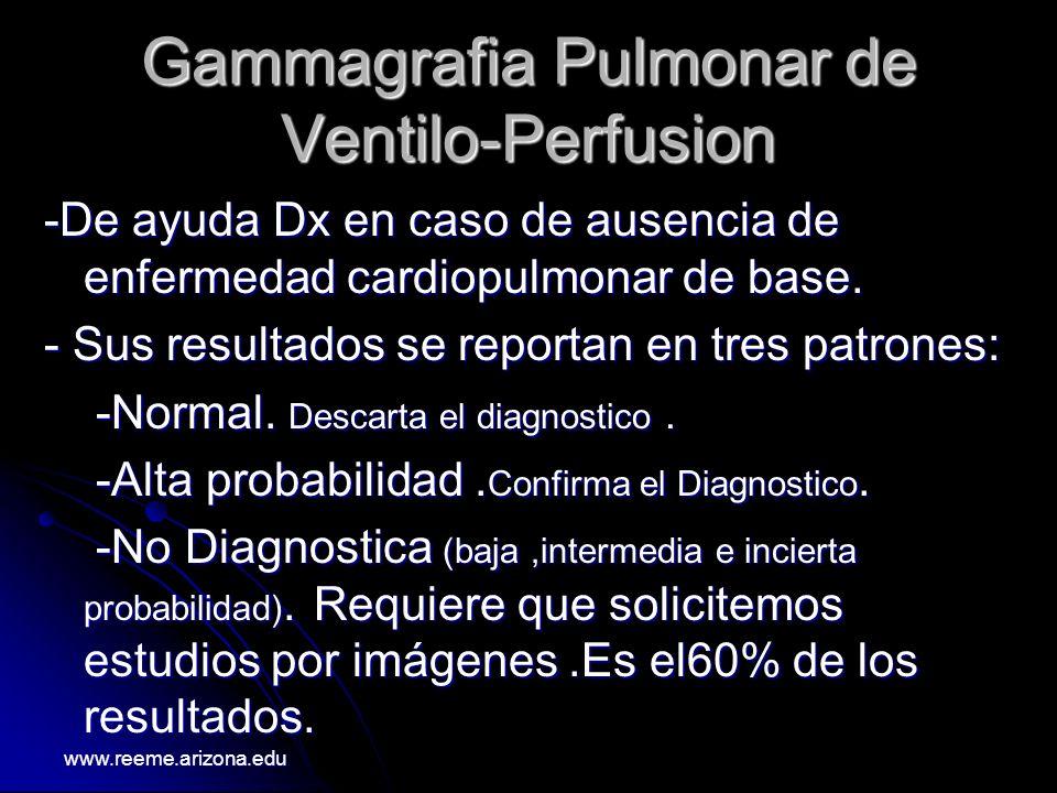 Gammagrafia Pulmonar de Ventilo-Perfusion -De ayuda Dx en caso de ausencia de enfermedad cardiopulmonar de base. - Sus resultados se reportan en tres