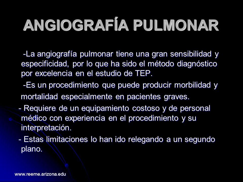 ANGIOGRAFÍA PULMONAR -La angiografía pulmonar tiene una gran sensibilidad y especificidad, por lo que ha sido el método diagnóstico por excelencia en