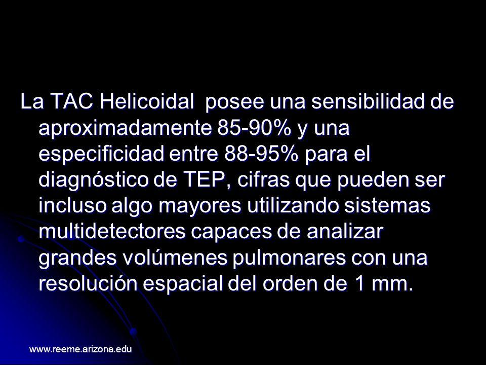 La TAC Helicoidal posee una sensibilidad de aproximadamente 85-90% y una especificidad entre 88-95% para el diagnóstico de TEP, cifras que pueden ser