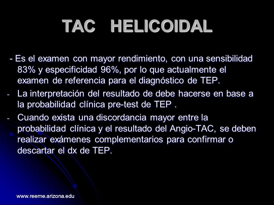 TAC HELICOIDAL - Es el examen con mayor rendimiento, con una sensibilidad 83% y especificidad 96%, por lo que actualmente el examen de referencia para