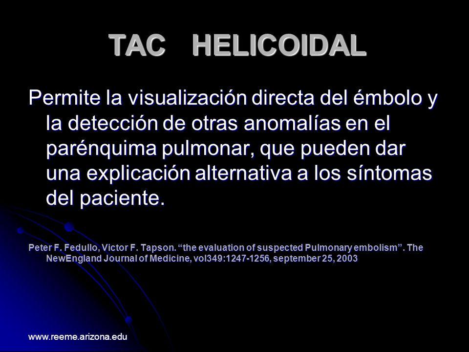 TAC HELICOIDAL TAC HELICOIDAL Permite la visualización directa del émbolo y la detección de otras anomalías en el parénquima pulmonar, que pueden dar
