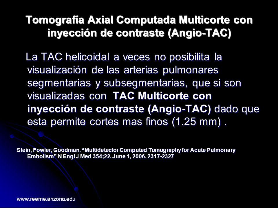 Tomografía Axial Computada Multicorte con inyección de contraste (Angio-TAC) La TAC helicoidal a veces no posibilita la visualización de las arterias
