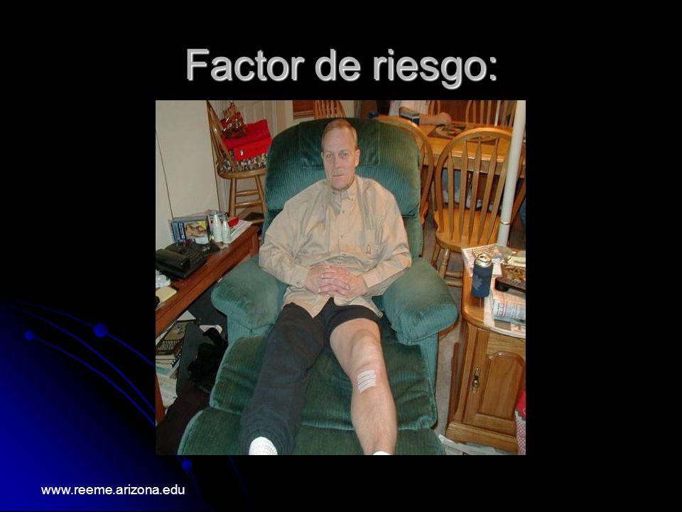 FACTORES DE RIESGO :HEREDITARIOS www.reeme.arizona.edu