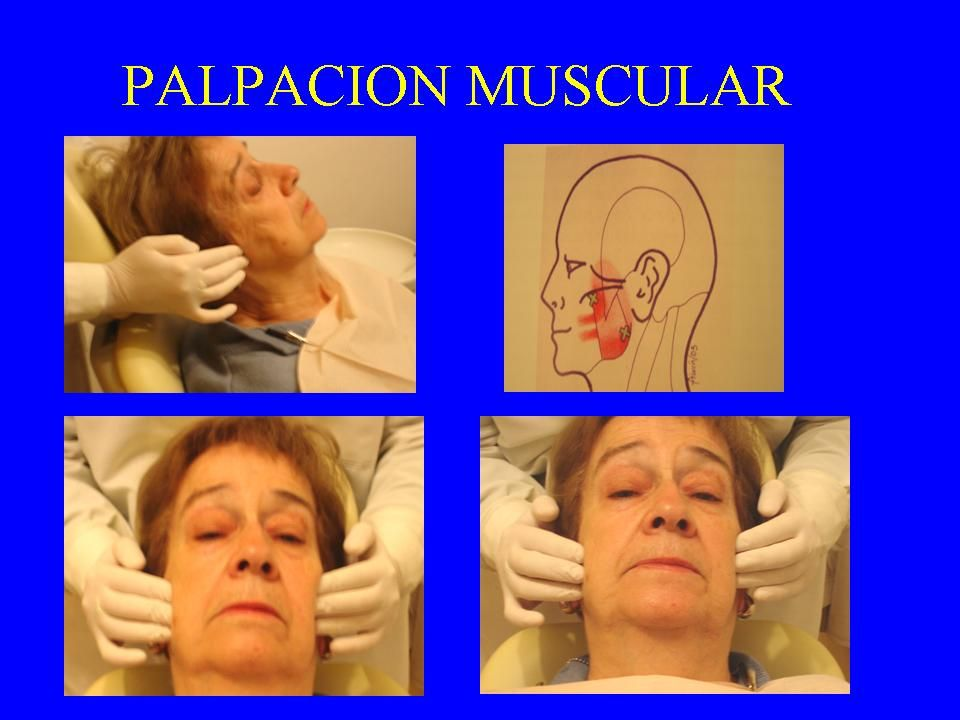 Palpación Muscular EVALUA: Mialgia (dolor) Hipertrofia (masa muscular) Hipertonicidad (potencia).