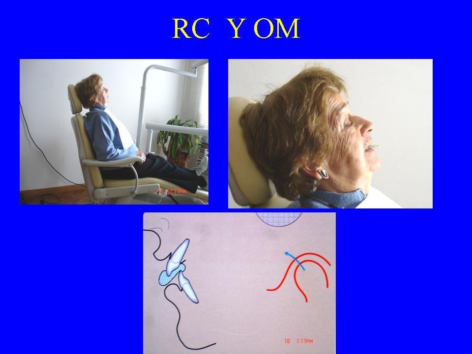R.C. Y O.M. Estudia coincidencia o no. primer contacto en R.C. deslizamiento R.C. a O.M. - Dimensión: sagital vertical -Dirección