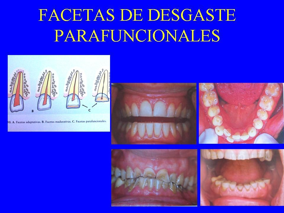 FACETAS DE DESGASTE PARAFUNCIONALES OBSERVACIÓN: - Órganos dentarios secos - Ubicar pares - Confrotarlas a) Funcionales – generadas cerca de OM Ubicac