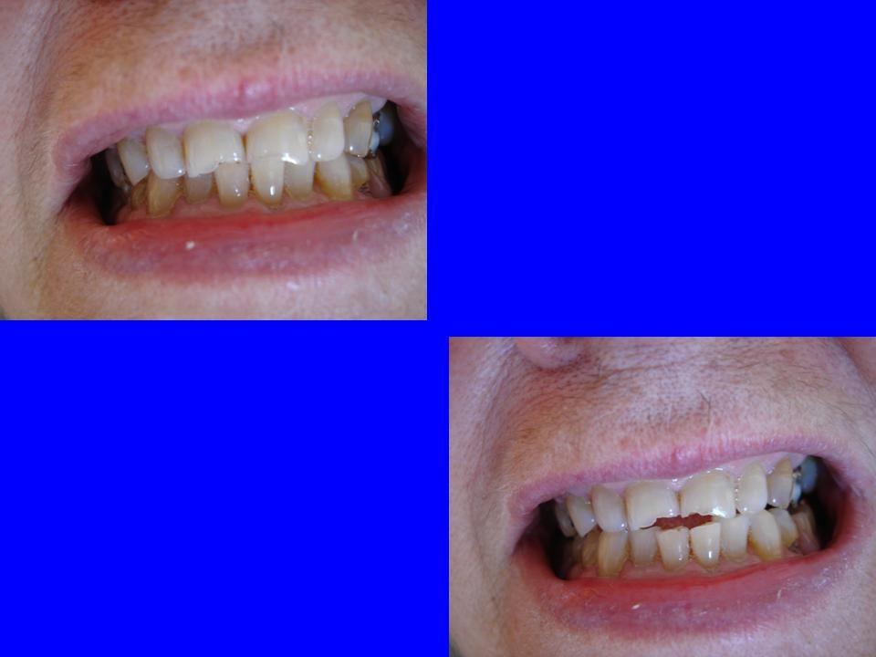 EXAMEN PERIODONTAL FUNCIONAL OBJETIVO: Correlacionar movilidad dentaria con sobrecarga funcional oclusal. REALIZACIÓN: Palpación de piezas dentarias c