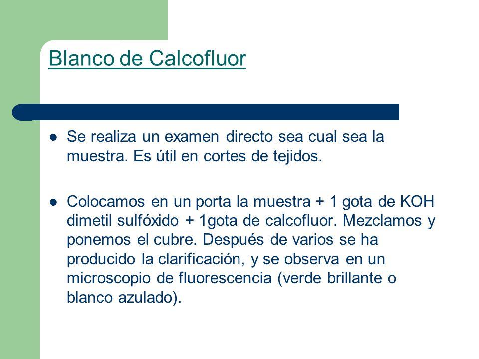 Blanco de Calcofluor Se realiza un examen directo sea cual sea la muestra. Es útil en cortes de tejidos. Colocamos en un porta la muestra + 1 gota de