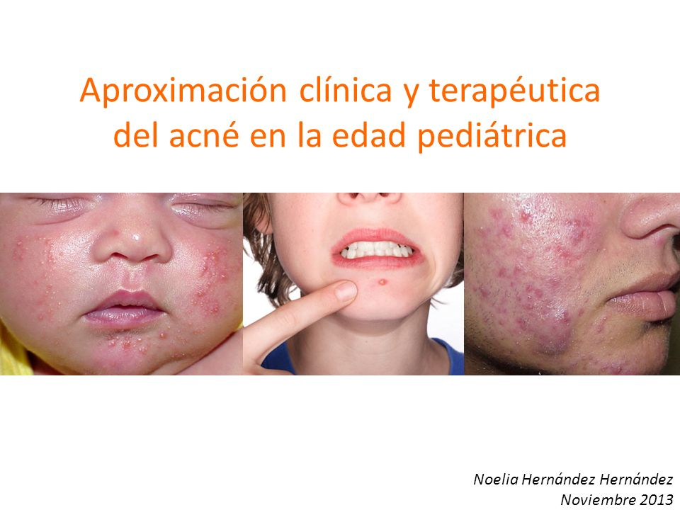 Acné variantes Drug-induced acne – (CT, fenitoína, fenobarbital, isoniacida, rifampicina, dactinomicina) Pomade acne – Productos pelo Afro-caribeños comedogénicos Cosmetic acne Acné excoriado Acné fulminans – Agudo.