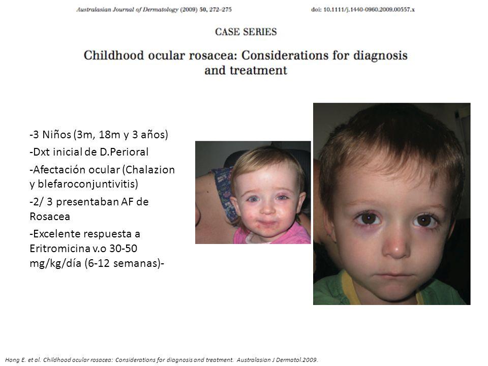 -3 Niños (3m, 18m y 3 años) -Dxt inicial de D.Perioral -Afectación ocular (Chalazion y blefaroconjuntivitis) -2/ 3 presentaban AF de Rosacea -Excelent