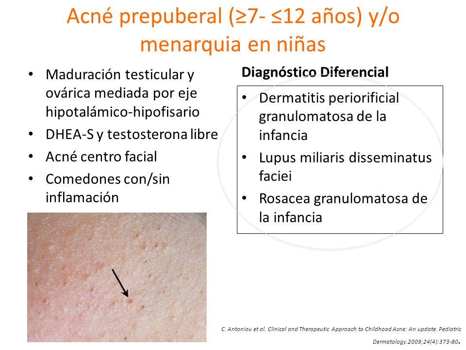 Acné prepuberal (7- 12 años) y/o menarquia en niñas Maduración testicular y ovárica mediada por eje hipotalámico-hipofisario DHEA-S y testosterona lib