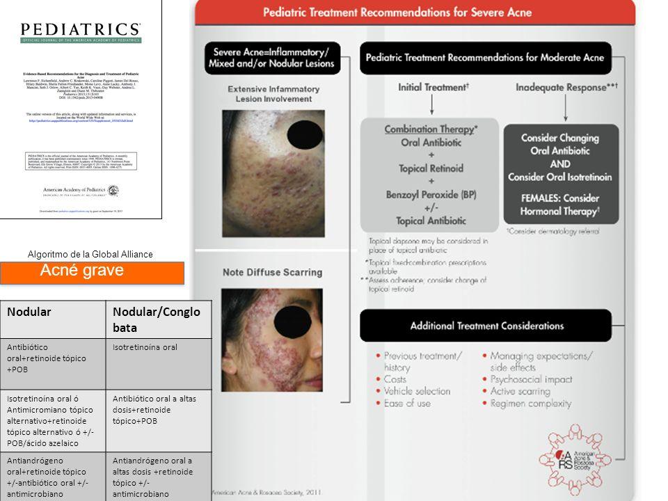Algoritmo de la Global Alliance Acné grave NodularNodular/Conglo bata Antibiótico oral+retinoide tópico +POB Isotretinoína oral Isotretinoína oral ó A