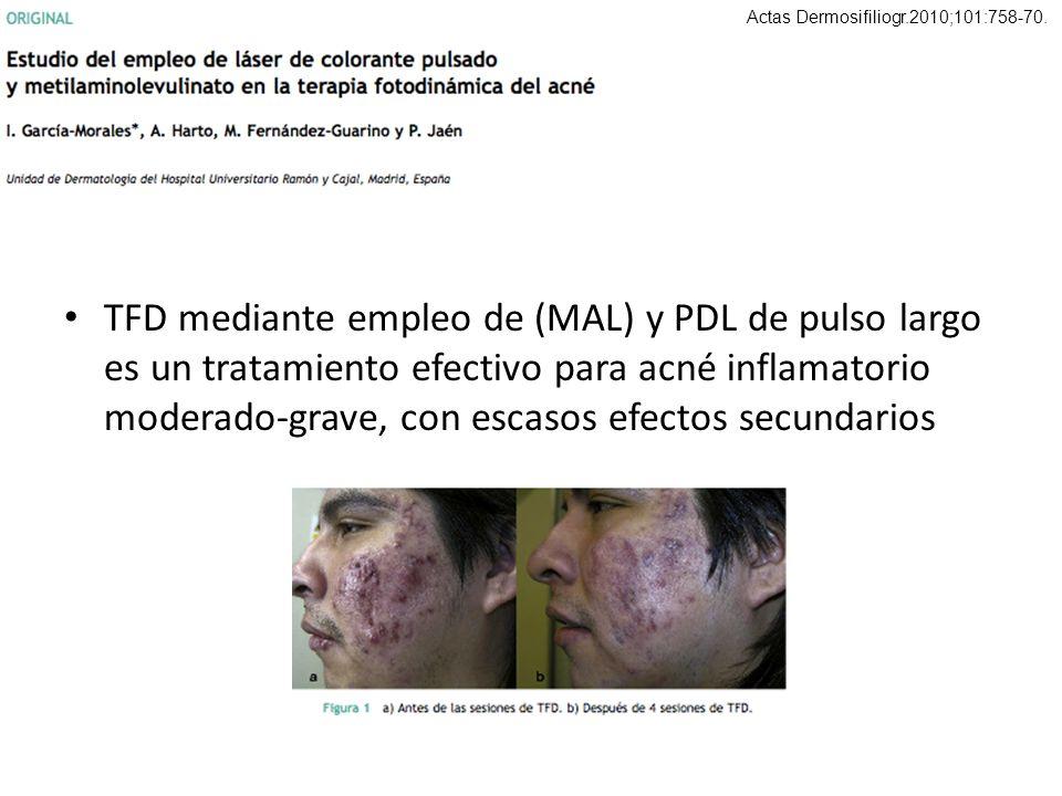 TFD mediante empleo de (MAL) y PDL de pulso largo es un tratamiento efectivo para acné inflamatorio moderado-grave, con escasos efectos secundarios Ac
