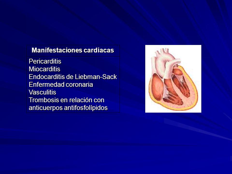 Manifestaciones cardiacas PericarditisMiocarditis Endocarditis de Liebman-Sack Enfermedad coronaria Vasculitis Trombosis en relación con anticuerpos a