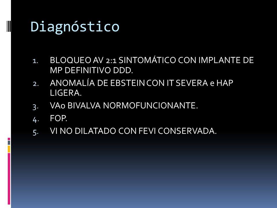 Diagnóstico 1. BLOQUEO AV 2:1 SINTOMÁTICO CON IMPLANTE DE MP DEFINITIVO DDD. 2. ANOMALÍA DE EBSTEIN CON IT SEVERA e HAP LIGERA. 3. VAo BIVALVA NORMOFU