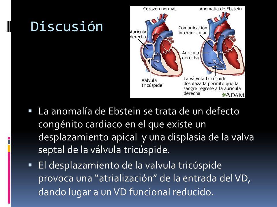 Discusión La anomalía de Ebstein se trata de un defecto congénito cardiaco en el que existe un desplazamiento apical y una displasia de la valva septa