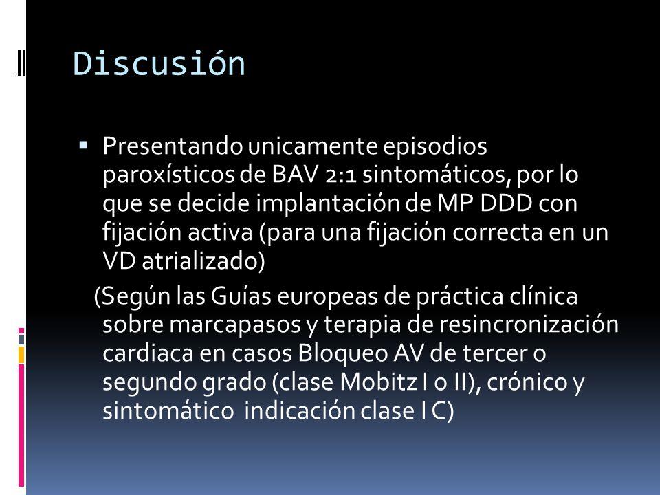 Discusión Presentando unicamente episodios paroxísticos de BAV 2:1 sintomáticos, por lo que se decide implantación de MP DDD con fijación activa (para