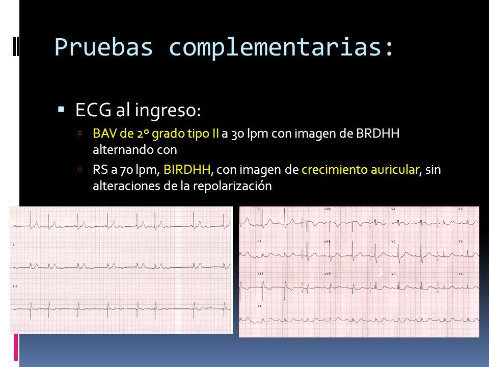 Pruebas complementarias: ECG al ingreso: BAV de 2º grado tipo II a 30 lpm con imagen de BRDHH alternando con RS a 70 lpm, BIRDHH, con imagen de crecim