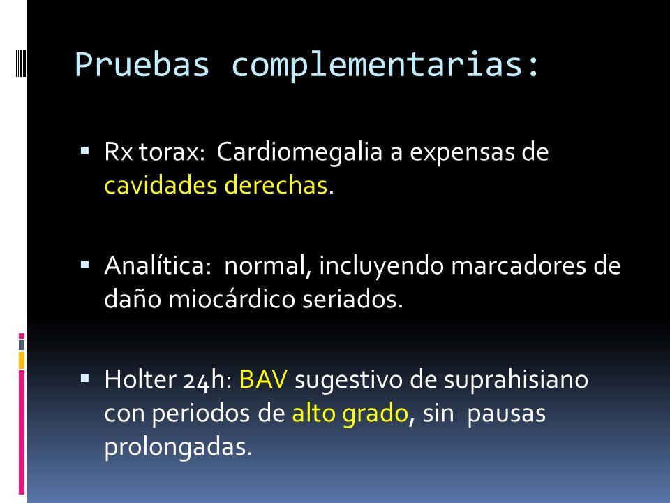 Pruebas complementarias: Rx torax: Cardiomegalia a expensas de cavidades derechas. Analítica: normal, incluyendo marcadores de daño miocárdico seriado
