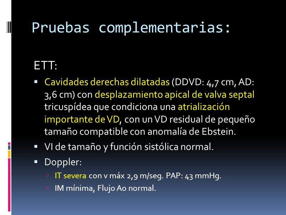 Pruebas complementarias: ETT: Cavidades derechas dilatadas (DDVD: 4,7 cm, AD: 3,6 cm) con desplazamiento apical de valva septal tricuspídea que condic